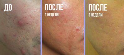 Лучшая лечебная косметика для проблемной кожи лица